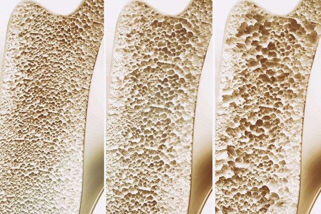 افزایش تراکم استخوان با تغذیه و ورزش