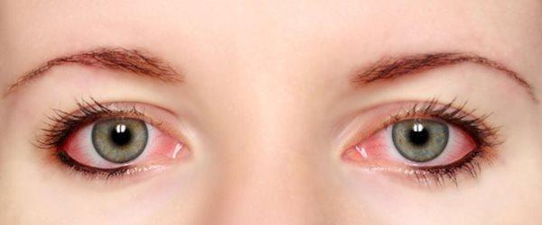 راهکارهای خانگی درمان برق زدگی چشم