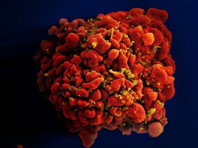 ژنوم ویروس ایدز در یک نمونه بافتی از سال 1966 یافت شد