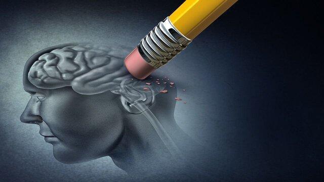 فراموشی و 7 دلیل بی ارتباط به آلزایمر!