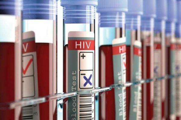 برای تشخیص محرمانه و رایگان ایدز به کجا باید مراجعه کرد؟