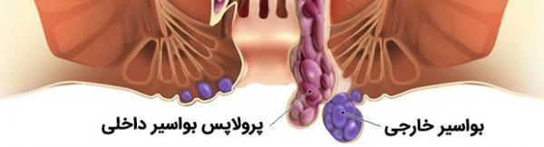 راه های درمان بواسیر خارجی با روش های پزشکی و گیاهی