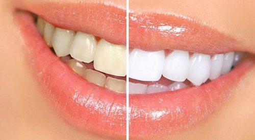 خوردنی هایی که دندان ها را زرد می کنند
